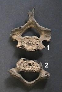 Рис. 3. Суставные поверхности 6 и 7 позвонков