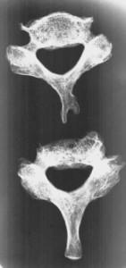 Рис. 4. Рентгенограмма 6 и 7 ползвонков