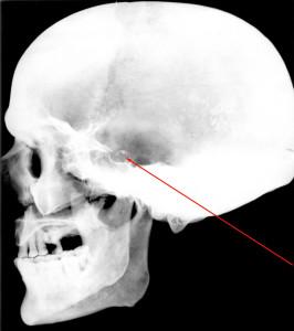 Рис. 7. Боковая рентгенограмма черепа